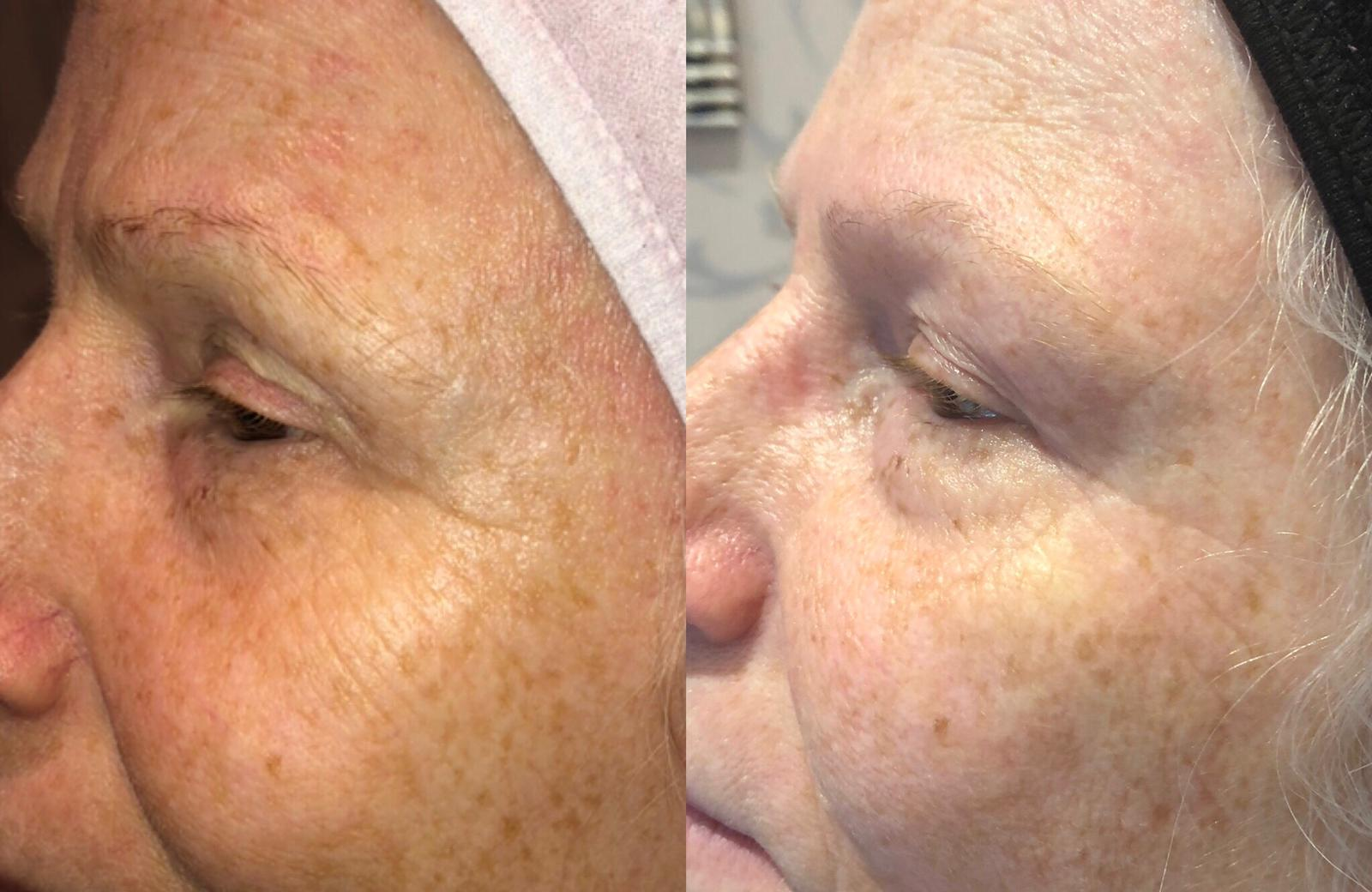 Blossom Beauty & Aesthetics Plasma facelift A